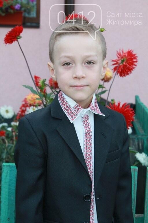«Об'єднав навколо себе весь світ!»: Неймовірна історія 8-річного хлопчика з Житомира, який поборов рідкісну хворобу, фото-3